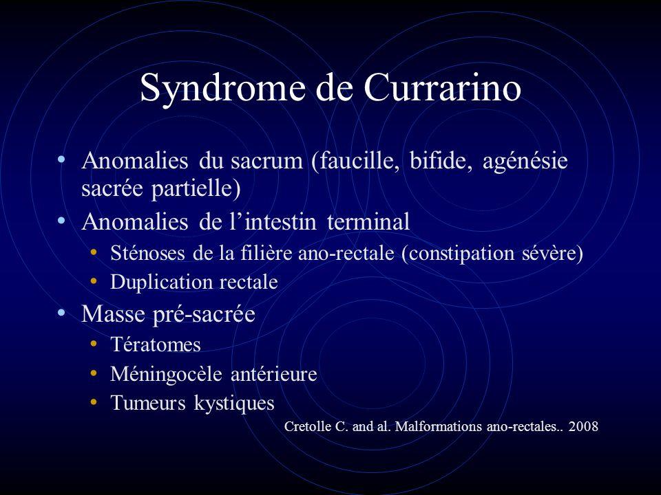 Syndrome de Currarino Anomalies du sacrum (faucille, bifide, agénésie sacrée partielle) Anomalies de lintestin terminal Sténoses de la filière ano-rec