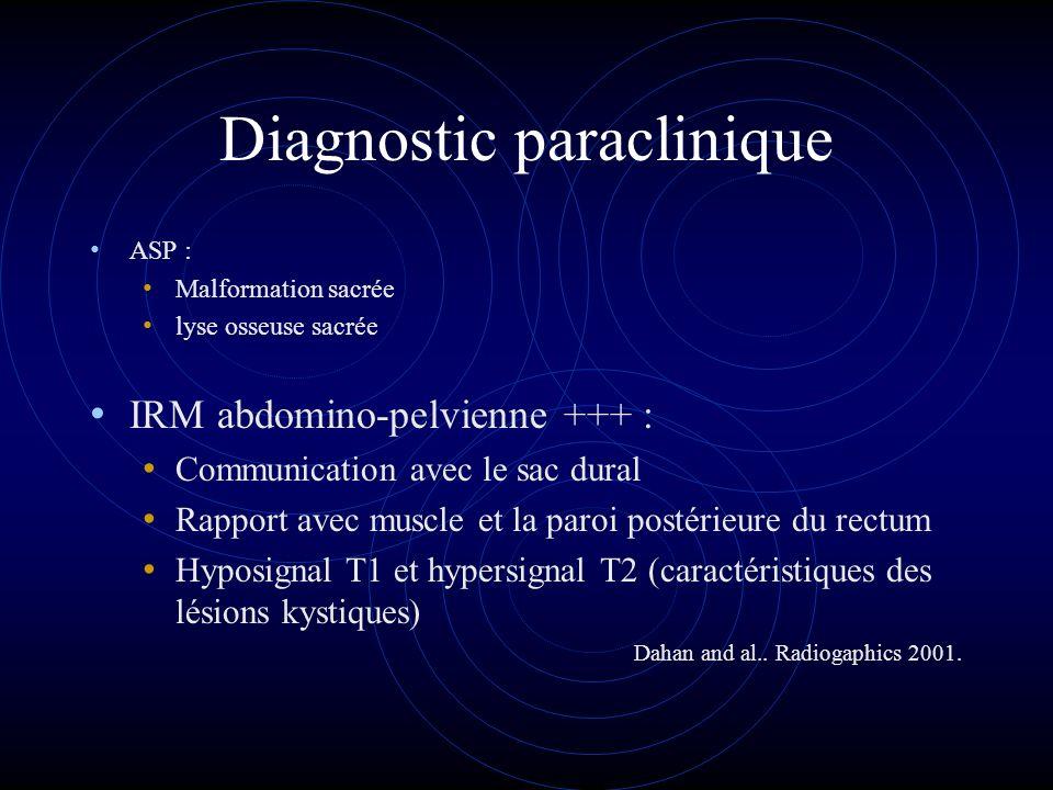 Diagnostic paraclinique ASP : Malformation sacrée lyse osseuse sacrée IRM abdomino-pelvienne +++ : Communication avec le sac dural Rapport avec muscle