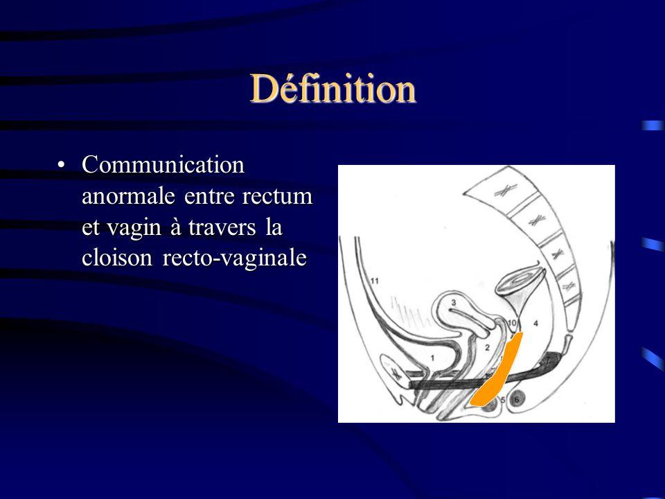 Définition Communication anormale entre rectum et vagin à travers la cloison recto-vaginaleCommunication anormale entre rectum et vagin à travers la cloison recto-vaginale