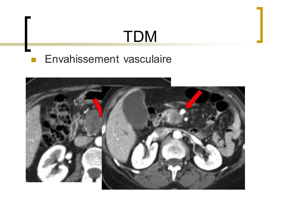 TDM Envahissement vasculaire