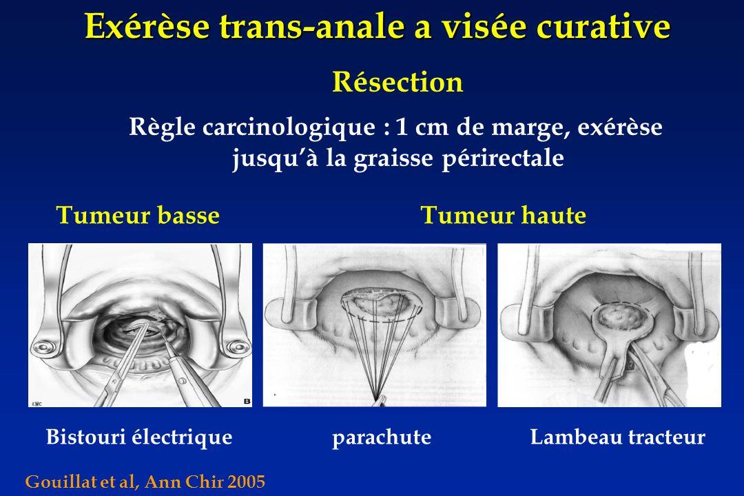 Exérèse trans-anale a visée curative Résection Règle carcinologique : 1 cm de marge, exérèse jusquà la graisse périrectale Bistouri électriqueparachut