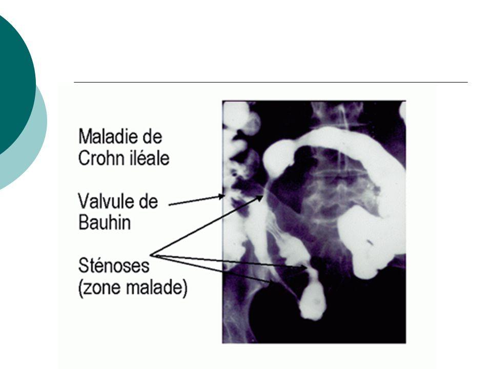 Principes thérapeutiques Traitement médical en 1ère intention Traitement chirurgical lors de complications en urgence ou lors de résistance au traitement médical Préparation du malade avant intervention : renutrition (alimentation parentérale) et sevrage corticoide