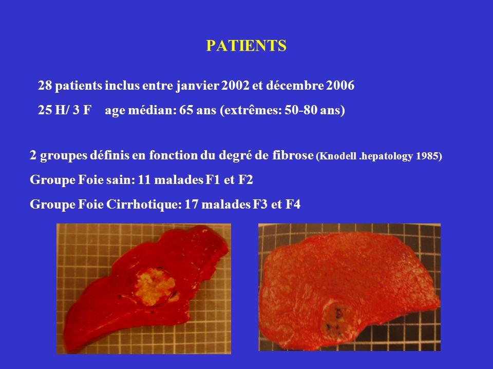 PATIENTS 28 patients inclus entre janvier 2002 et décembre 2006 25 H/ 3 F age médian: 65 ans (extrêmes: 50-80 ans) 2 groupes définis en fonction du degré de fibrose (Knodell.hepatology 1985) Groupe Foie sain: 11 malades F1 et F2 Groupe Foie Cirrhotique: 17 malades F3 et F4