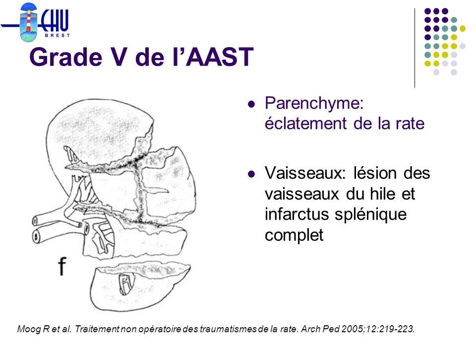 Grade V de lAAST Parenchyme: éclatement de la rate Vaisseaux: lésion des vaisseaux du hile et infarctus splénique complet Moog R et al. Traitement non
