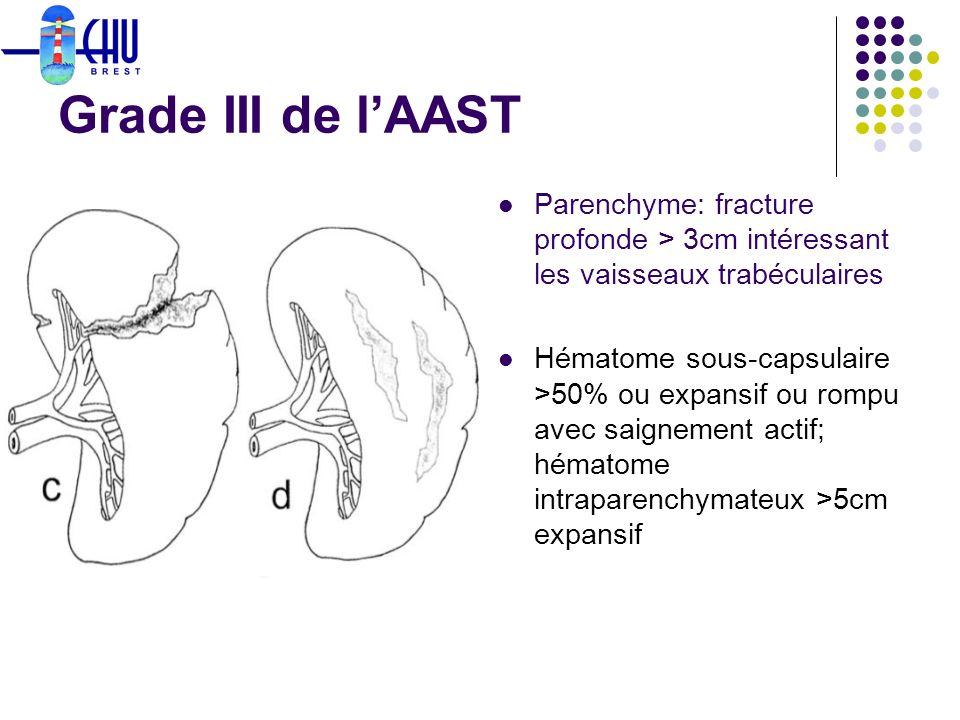Grade III de lAAST Parenchyme: fracture profonde > 3cm intéressant les vaisseaux trabéculaires Hématome sous-capsulaire >50% ou expansif ou rompu avec