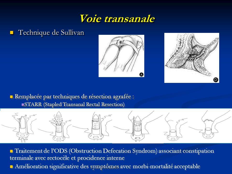 Voie transanale Technique de Sullivan Technique de Sullivan Remplacée par techniques de résection agrafée : Remplacée par techniques de résection agra