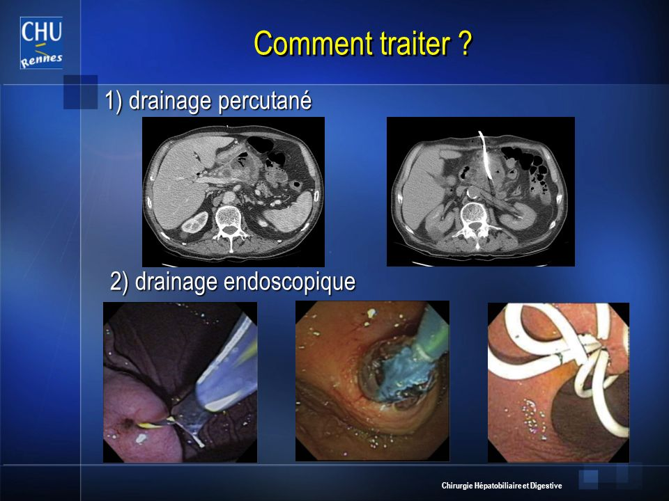 Chirurgie Hépatobiliaire et Digestive Comment traiter ? 1) drainage percutané 1) drainage percutané 2) drainage endoscopique 2) drainage endoscopique