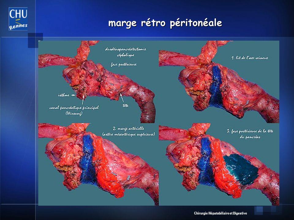 Chirurgie Hépatobiliaire et Digestive marge rétro péritonéale