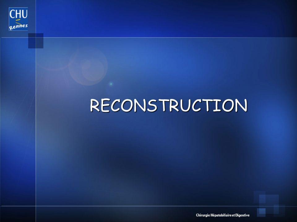 Chirurgie Hépatobiliaire et Digestive RECONSTRUCTION RECONSTRUCTION