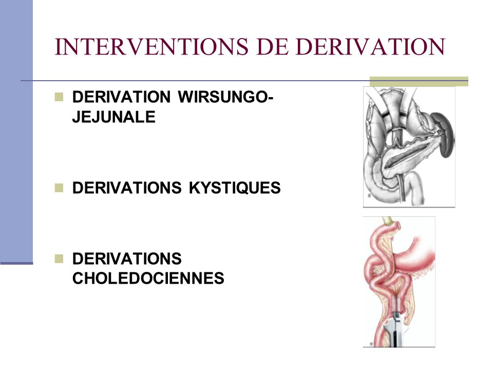 INTERVENTIONS DE DERIVATION DERIVATION WIRSUNGO- JEJUNALE DERIVATIONS KYSTIQUES DERIVATIONS CHOLEDOCIENNES