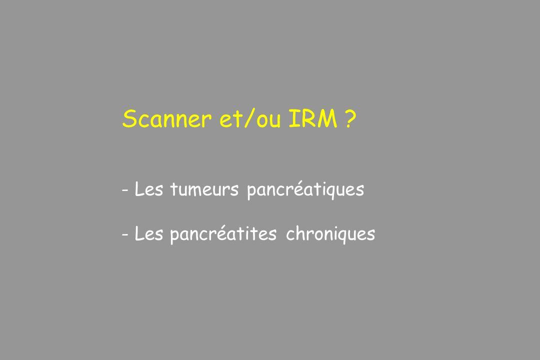 Scanner et/ou IRM ? - Les tumeurs pancréatiques - Les pancréatites chroniques