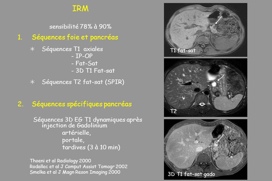 IRM sensibilité 78% à 90% 1.Séquences foie et pancréas Séquences T1 axiales - IP-OP - Fat-Sat - 3D T1 Fat-sat Séquences T2 fat-sat (SPIR) 2.Séquences