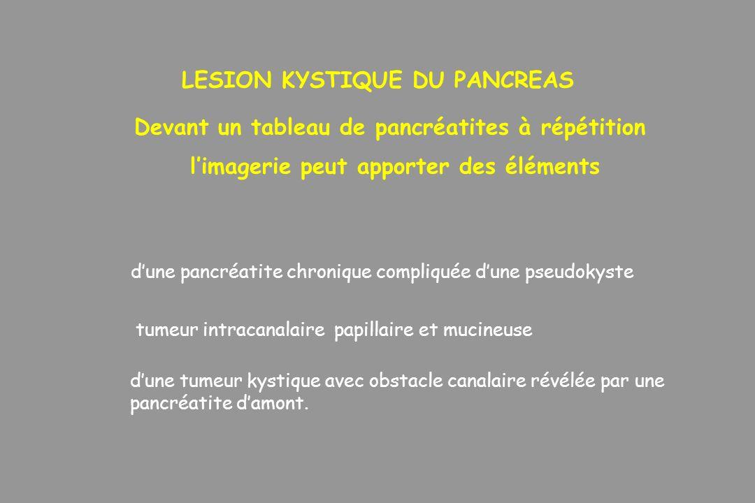 LESION KYSTIQUE DU PANCREAS Devant un tableau de pancréatites à répétition limagerie peut apporter des éléments dune pancréatite chronique compliquée