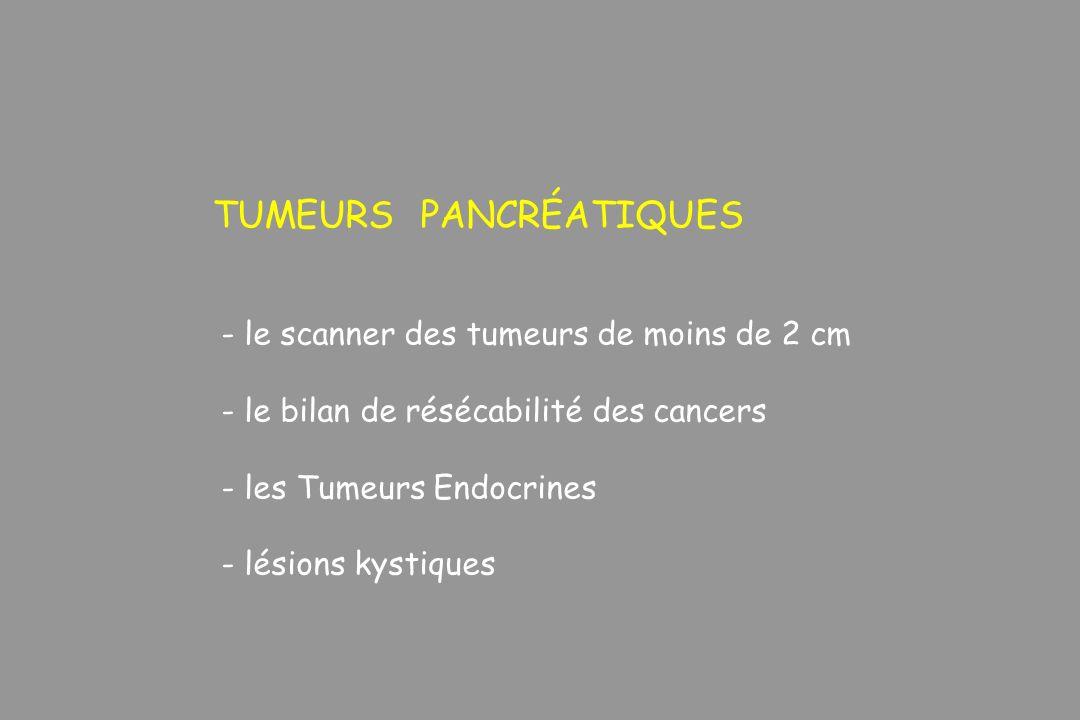 TUMEURS PANCRÉATIQUES - le scanner des tumeurs de moins de 2 cm - le bilan de résécabilité des cancers - les Tumeurs Endocrines - lésions kystiques