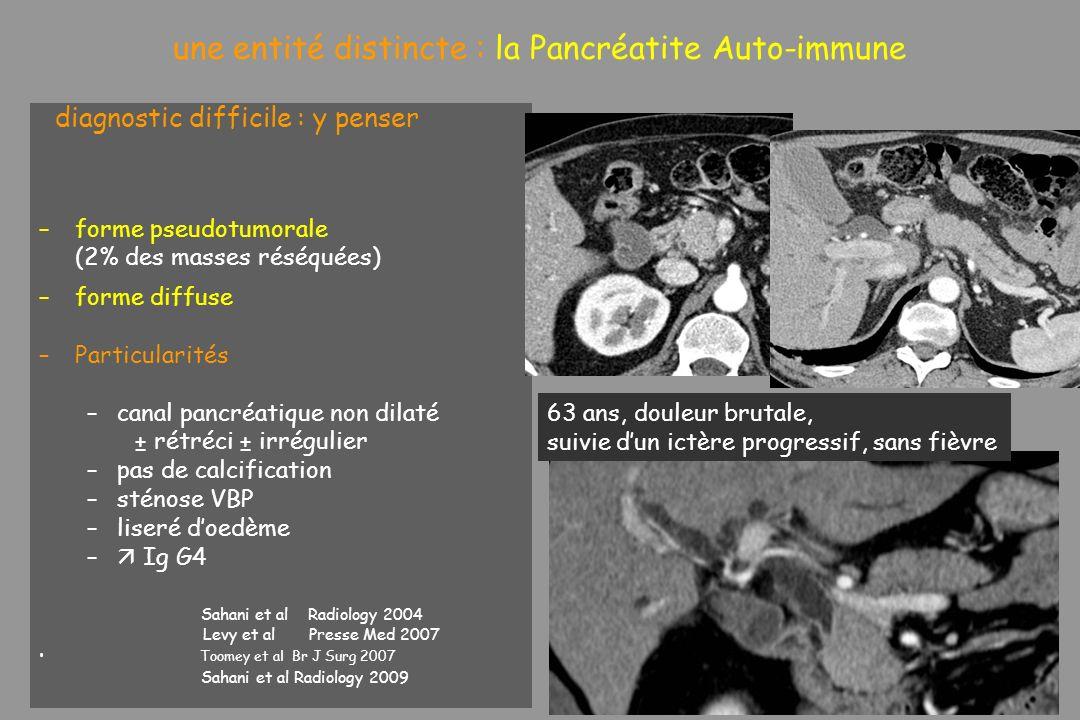 une entité distincte : la Pancréatite Auto-immune diagnostic difficile : y penser –forme pseudotumorale (2% des masses réséquées) –forme diffuse –Part