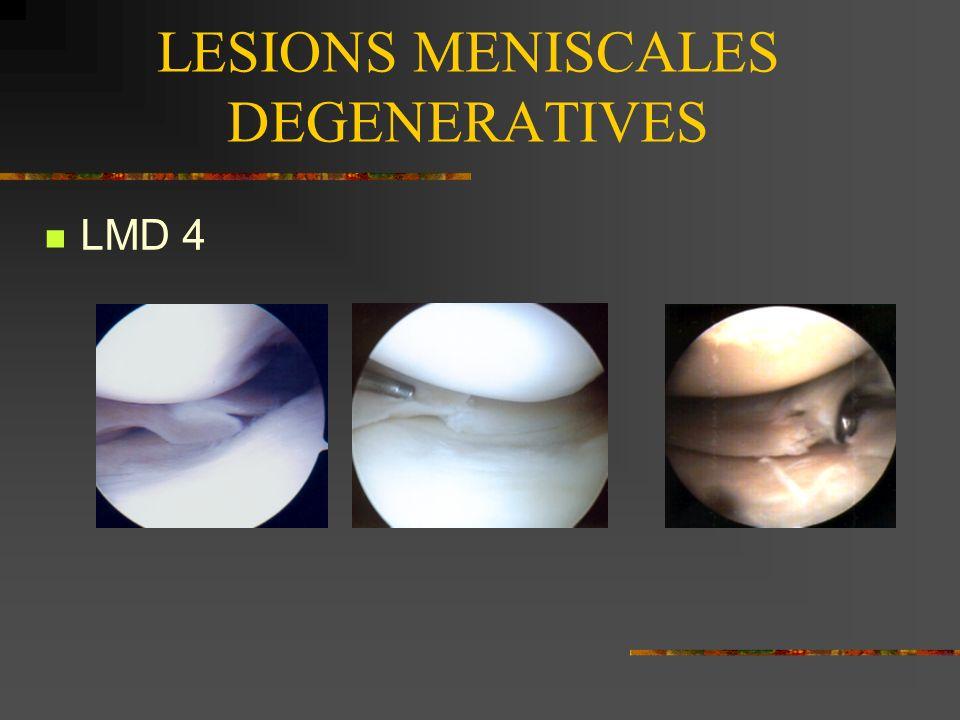 LESIONS MENISCALES DEGENERATIVES CCA Lésions anarchiques + arthrose