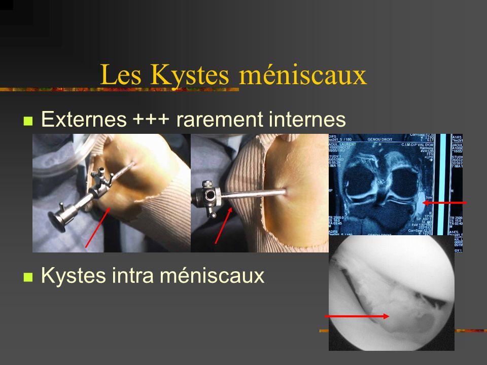 La Méniscectomie Instruments de base