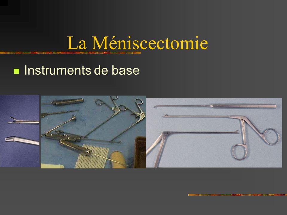 La Méniscectomie Technique deux voies Anse de seau
