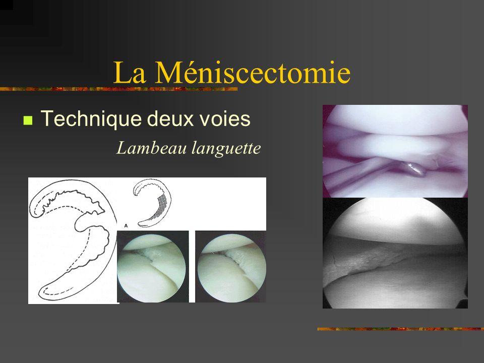 La Méniscectomie languette