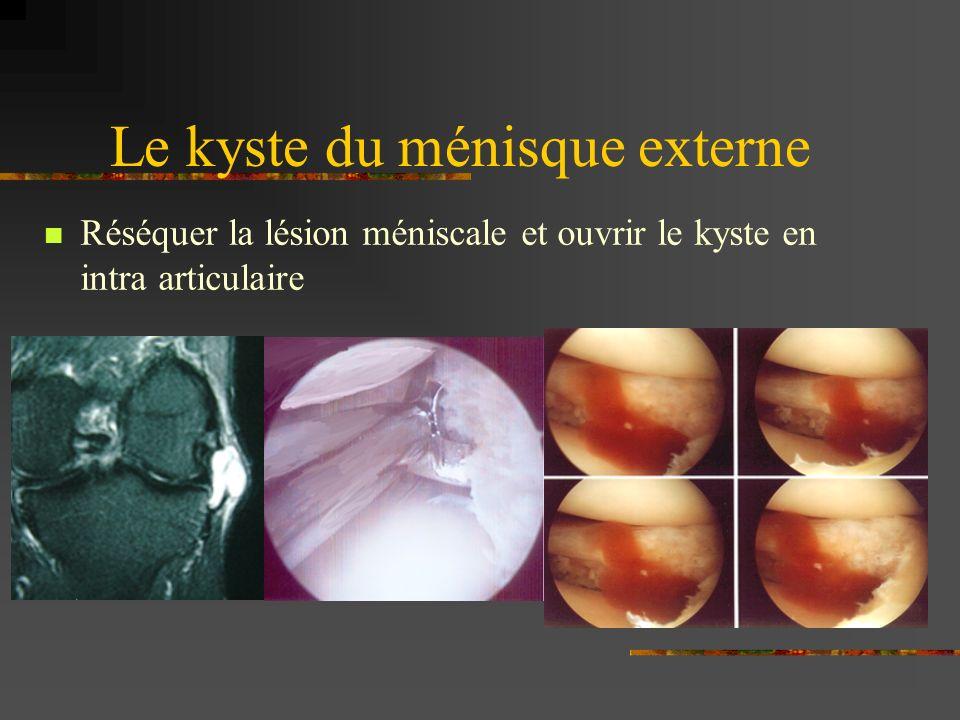 La suture méniscale Techniques diverses Risque vasculaire et neurologique en externe