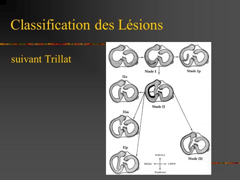 CLASSIFICATION DES LESIONS Lésions longitudinales o Lésion verticale isolée peu étendue