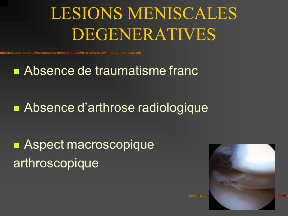 LESIONS MENISCALES DEGENERATIVES LMD 4