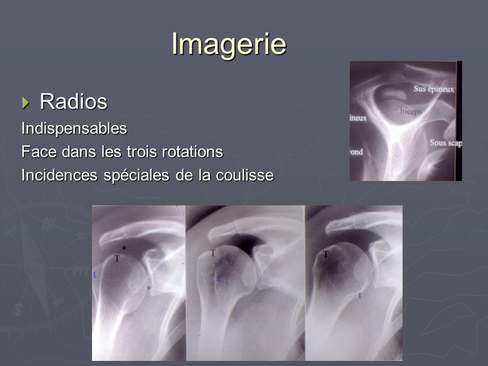 Imagerie Radios RadiosIndispensables Face dans les trois rotations Incidences spéciales de la coulisse
