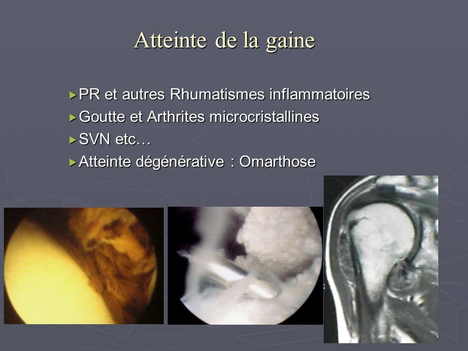 Atteinte de la gaine PR et autres Rhumatismes inflammatoires PR et autres Rhumatismes inflammatoires Goutte et Arthrites microcristallines Goutte et A