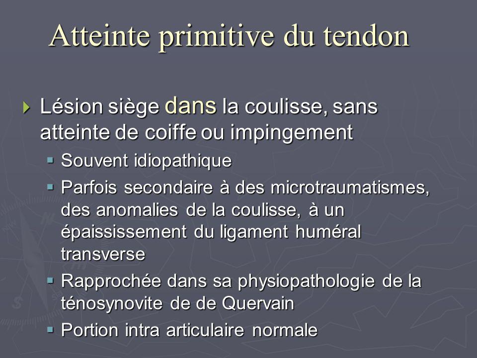 Atteinte primitive du tendon Lésion siège dans la coulisse, sans atteinte de coiffe ou impingement Lésion siège dans la coulisse, sans atteinte de coi