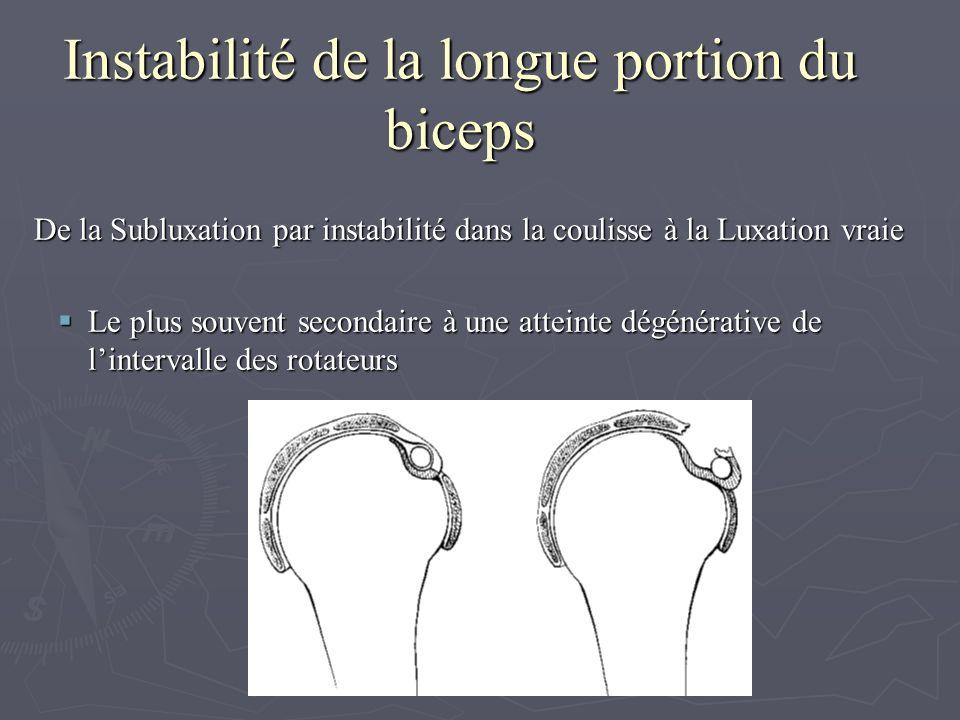 Instabilité de la longue portion du biceps De la Subluxation par instabilité dans la coulisse à la Luxation vraie De la Subluxation par instabilité da