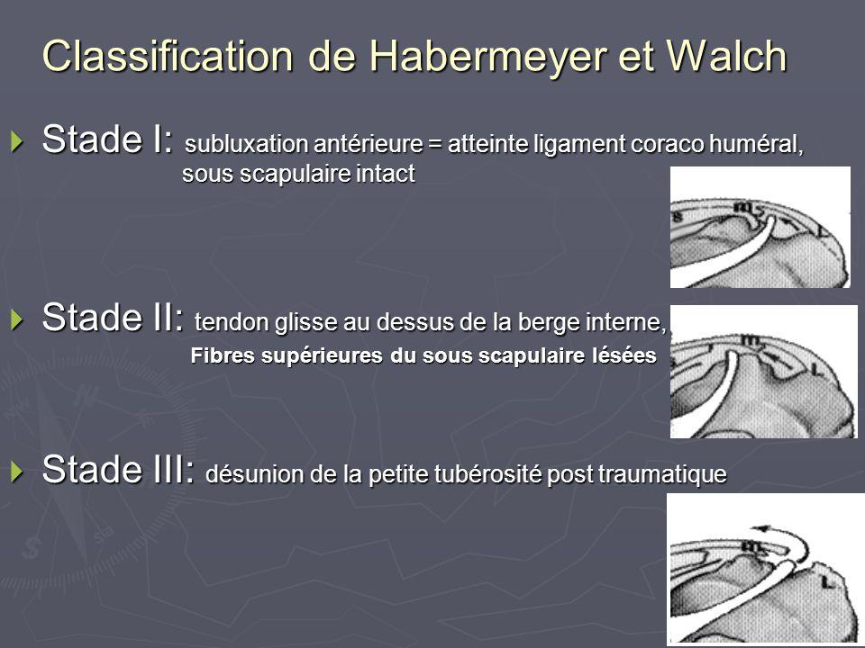 Classification de Habermeyer et Walch Stade I: subluxation antérieure = atteinte ligament coraco huméral, sous scapulaire intact Stade I: subluxation