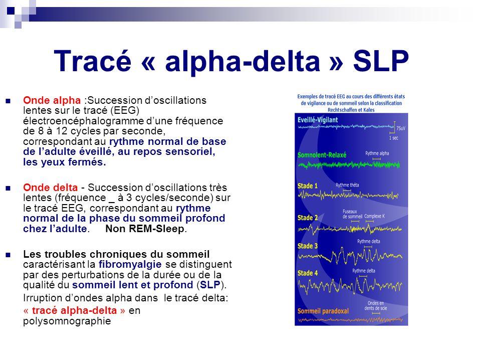 Tracé « alpha-delta » SLP Onde alpha :Succession doscillations lentes sur le tracé (EEG) électroencéphalogramme dune fréquence de 8 à 12 cycles par se