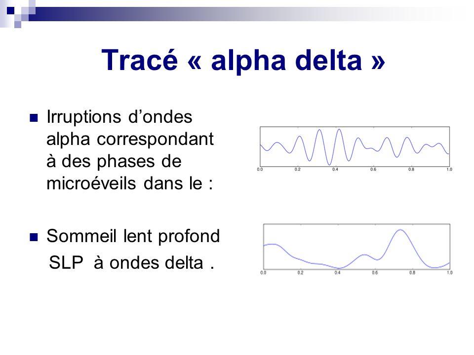 Tracé « alpha delta » Irruptions dondes alpha correspondant à des phases de microéveils dans le : Sommeil lent profond SLP à ondes delta.