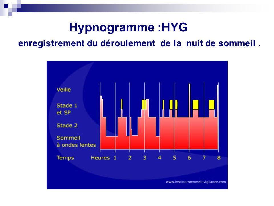 Hypnogramme :HYG enregistrement du déroulement de la nuit de sommeil.