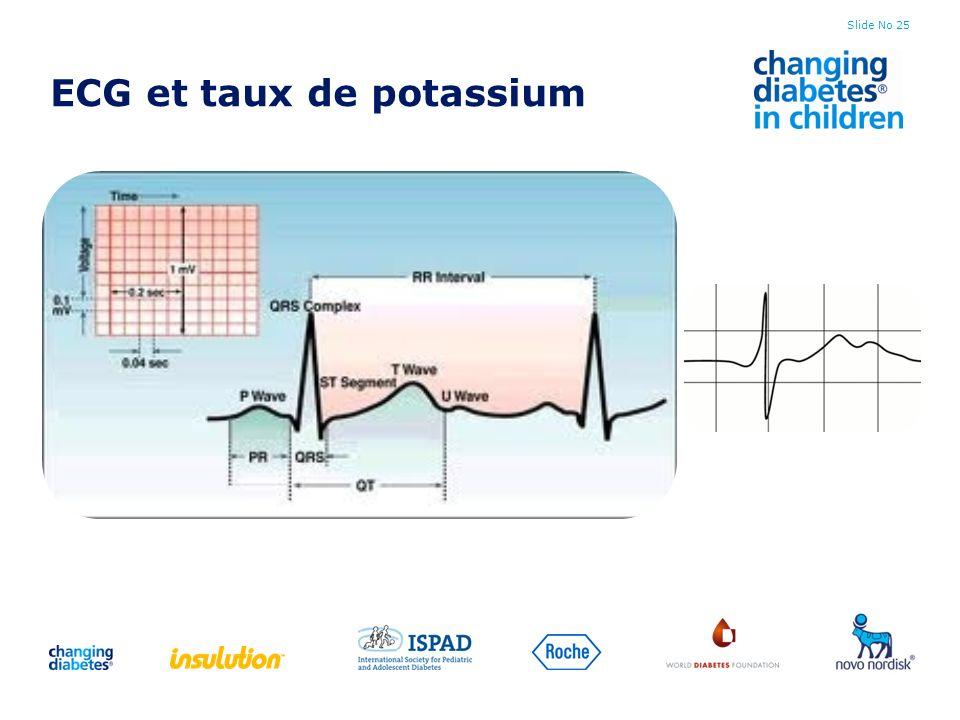 Slide No 25 ECG et taux de potassium
