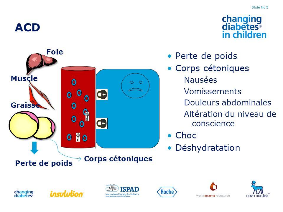 Slide No 5 ACD Perte de poids Corps cétoniques Nausées Vomissements Douleurs abdominales Altération du niveau de conscience Choc Déshydratation Foie M