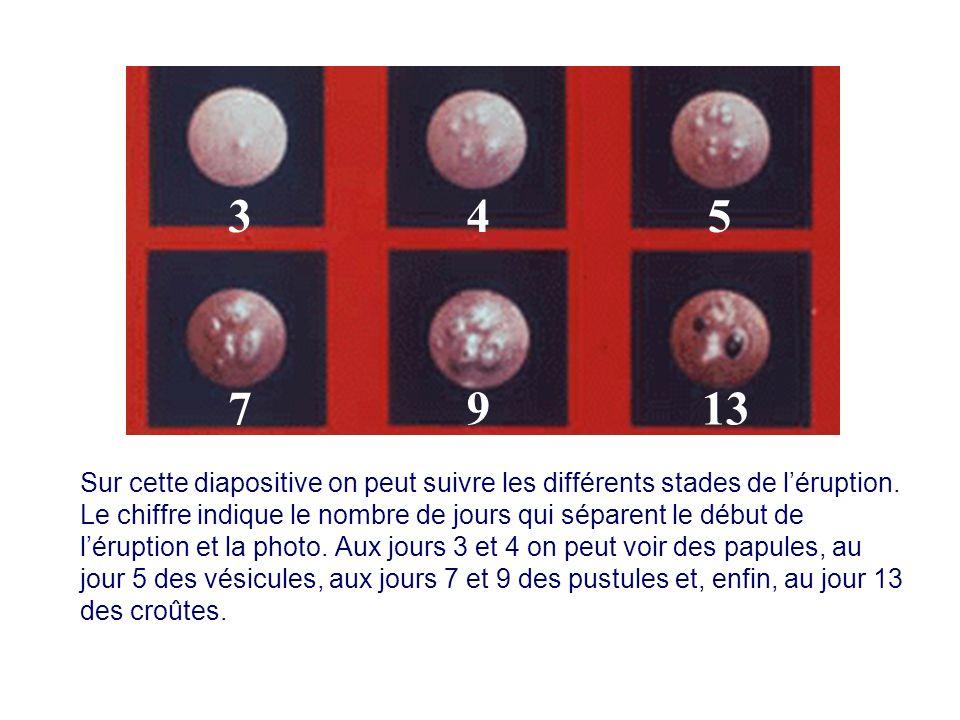 Sur cette diapositive on peut suivre les différents stades de léruption. Le chiffre indique le nombre de jours qui séparent le début de léruption et l
