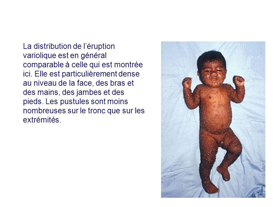 La distribution de léruption variolique est en général comparable à celle qui est montrée ici. Elle est particulièrement dense au niveau de la face, d