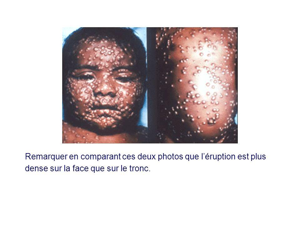 Remarquer en comparant ces deux photos que léruption est plus dense sur la face que sur le tronc.