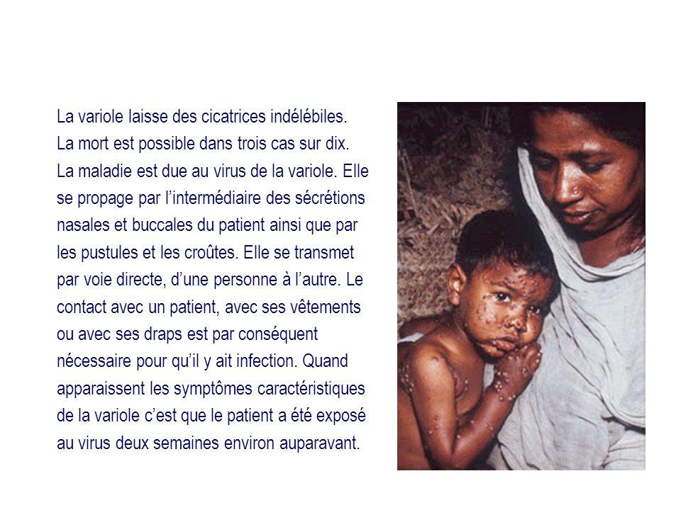 La variole laisse des cicatrices indélébiles. La mort est possible dans trois cas sur dix. La maladie est due au virus de la variole. Elle se propage