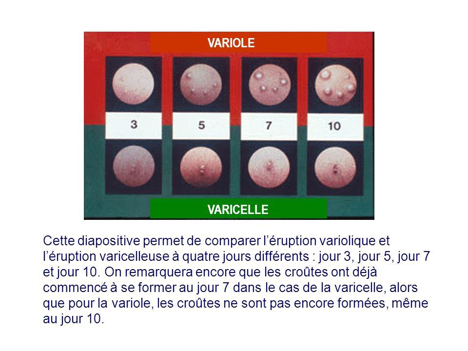 Cette diapositive permet de comparer léruption variolique et léruption varicelleuse à quatre jours différents : jour 3, jour 5, jour 7 et jour 10. On