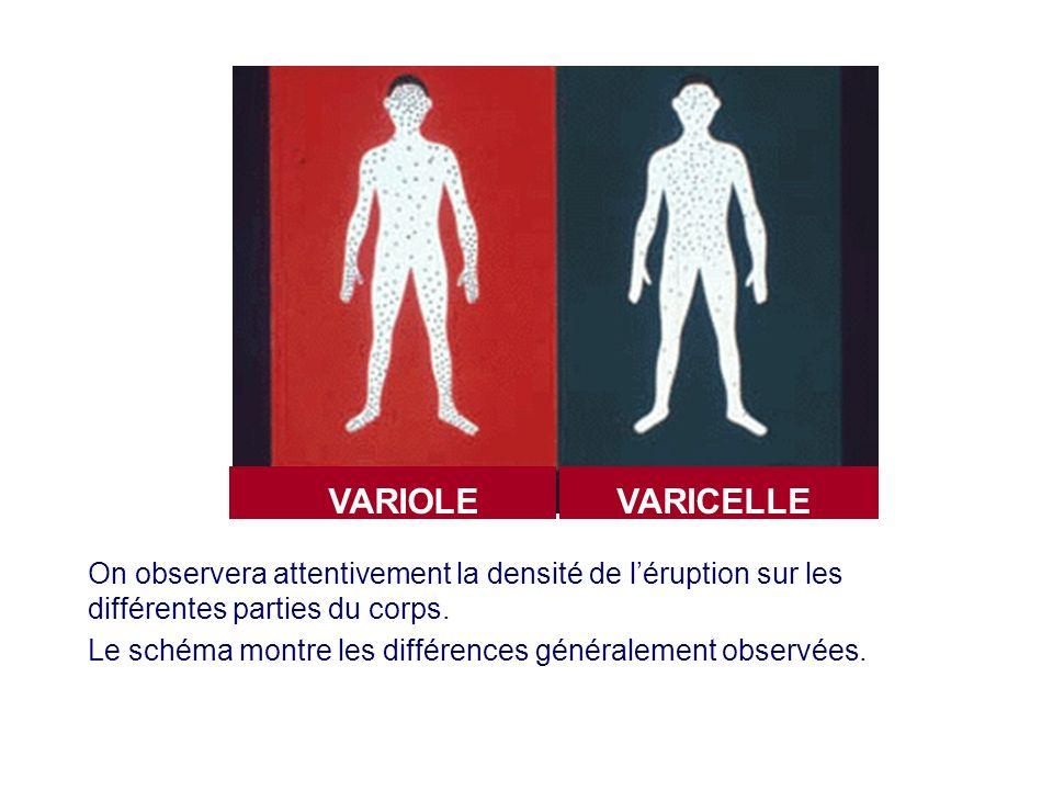 On observera attentivement la densité de léruption sur les différentes parties du corps. Le schéma montre les différences généralement observées. VARI