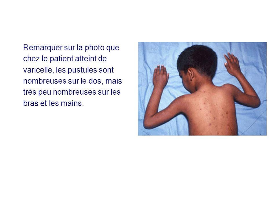 Remarquer sur la photo que chez le patient atteint de varicelle, les pustules sont nombreuses sur le dos, mais très peu nombreuses sur les bras et les