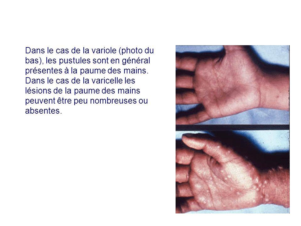 Dans le cas de la variole (photo du bas), les pustules sont en général présentes à la paume des mains. Dans le cas de la varicelle les lésions de la p