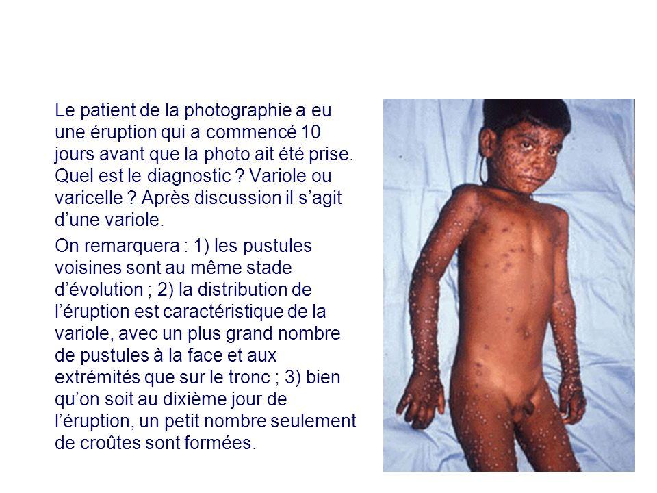 Le patient de la photographie a eu une éruption qui a commencé 10 jours avant que la photo ait été prise. Quel est le diagnostic ? Variole ou varicell
