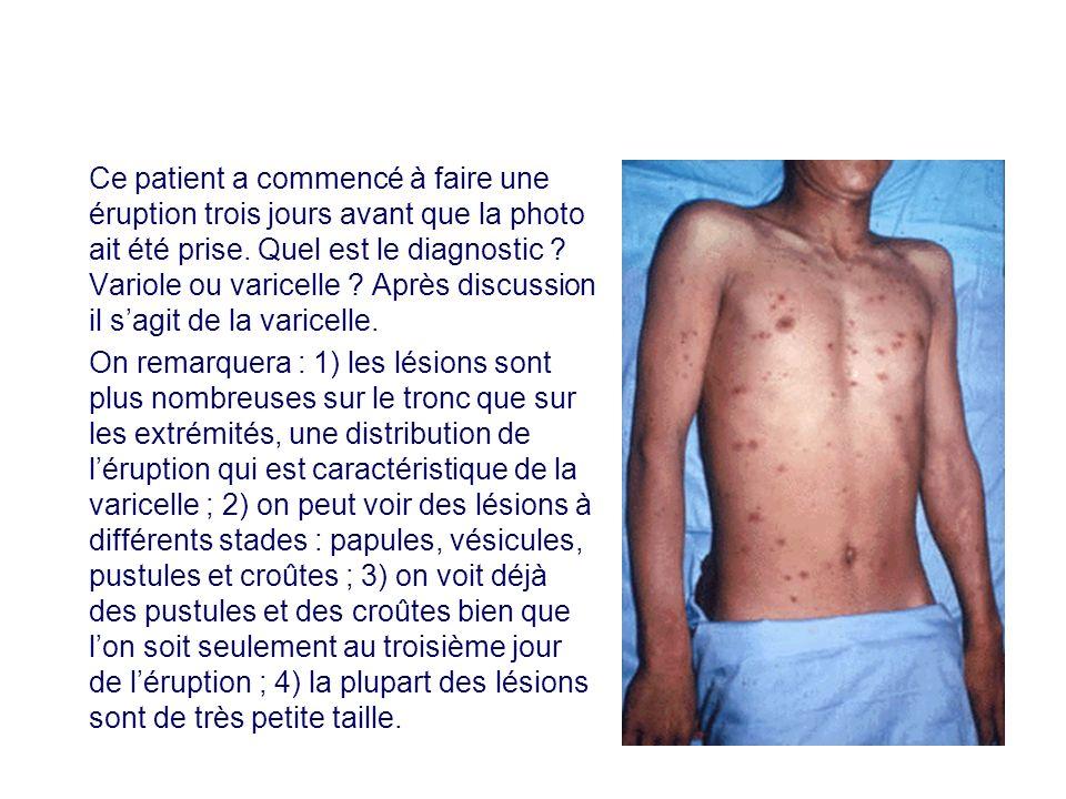 Ce patient a commencé à faire une éruption trois jours avant que la photo ait été prise. Quel est le diagnostic ? Variole ou varicelle ? Après discuss