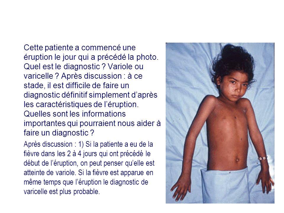 Cette patiente a commencé une éruption le jour qui a précédé la photo. Quel est le diagnostic ? Variole ou varicelle ? Après discussion : à ce stade,