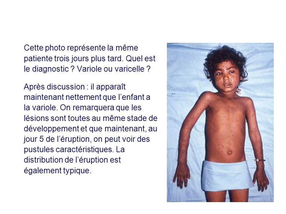 Cette photo représente la même patiente trois jours plus tard. Quel est le diagnostic ? Variole ou varicelle ? Après discussion : il apparaît maintena