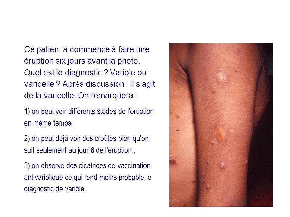 Ce patient a commencé à faire une éruption six jours avant la photo. Quel est le diagnostic ? Variole ou varicelle ? Après discussion : il sagit de la