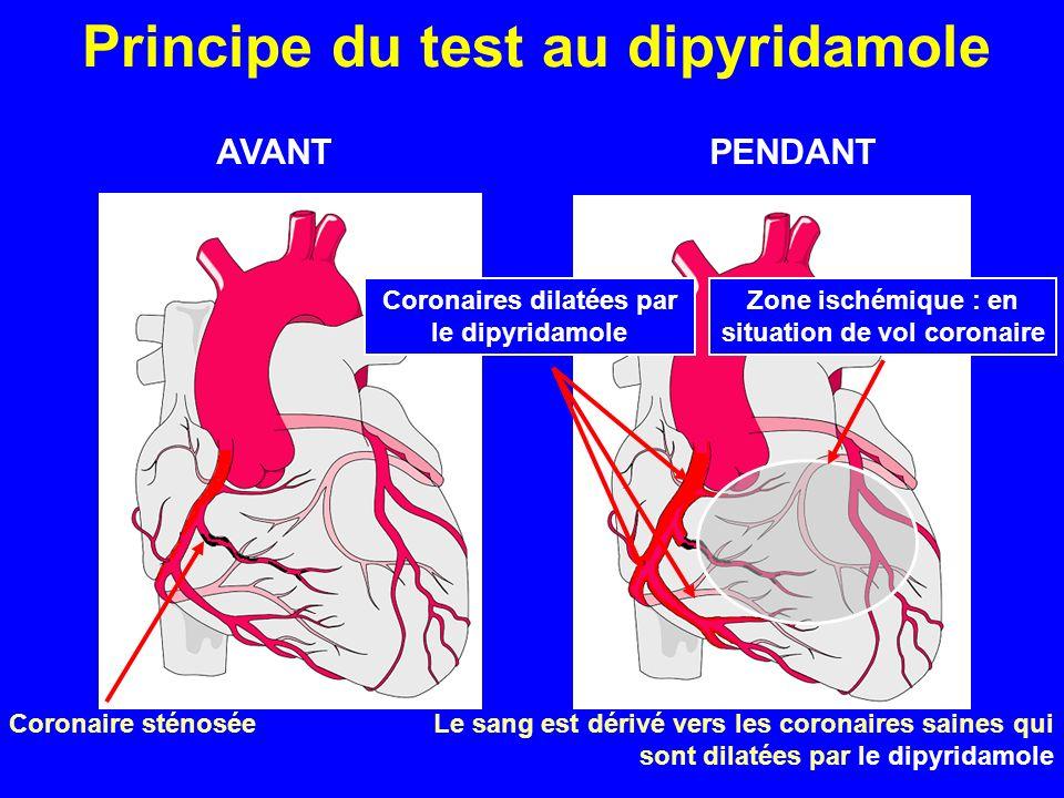 Coronaire sténosée Coronaires dilatées par le dipyridamole Zone ischémique : en situation de vol coronaire AVANTPENDANT Principe du test au dipyridamo